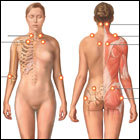 Key questions on fibromyalgia