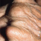 Clinical casebook: Inflammatory arthritis